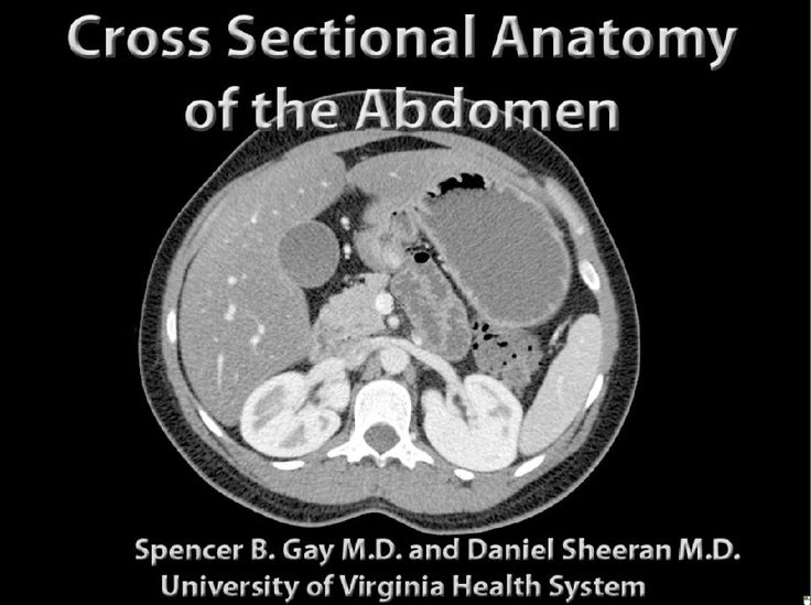 cross sectional anatomy ct and mri pdf
