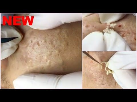 Large Chunky Whiteheads on Both Cheeks - Best Pimple ...