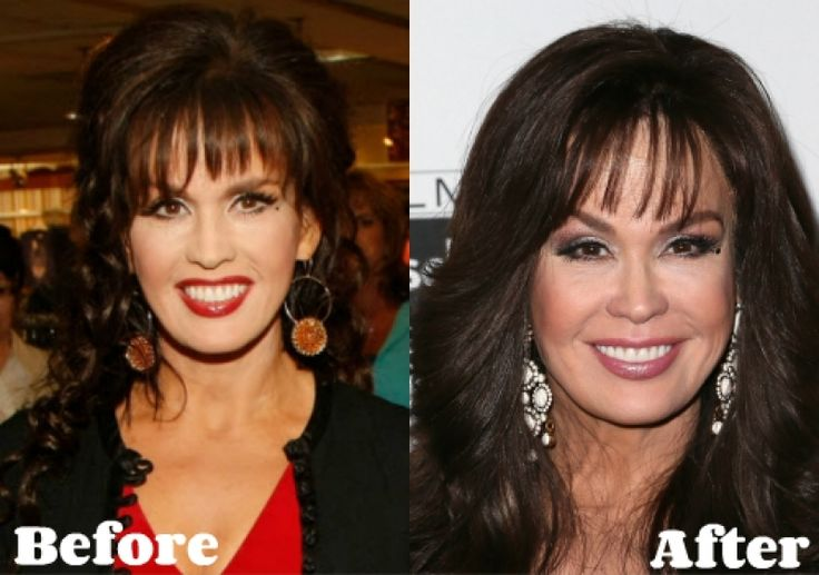 Marie Osmond Plastic Surgery Gone Wrong why marie osmond plastic surgery was such a success