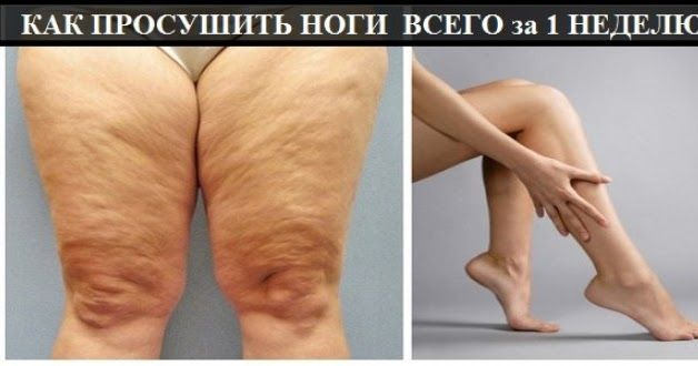 Так уж повелось, что ноги являются олицетворением женской красоты. И это не банально, ведь часто приходится слышать крылатые фразы, ти...