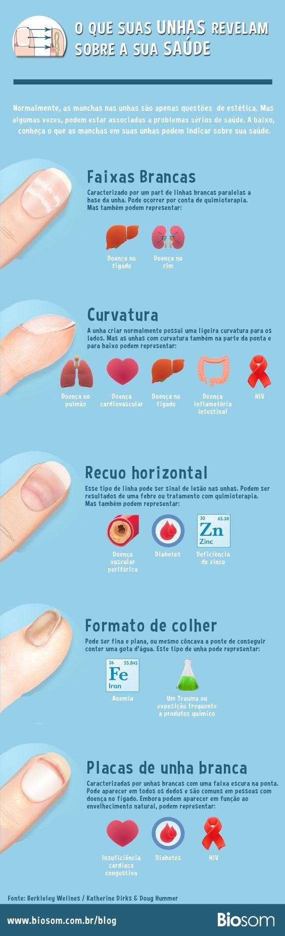 Nosso corpo é incrível e algumas vezes nos relevam informações sutis sobre nossa saúde. Confira alguns sinais que nossas unhas podem dam sobre nossa saúde. #unhas #saúde #corpo #manchanaunha #tiposdeunhas