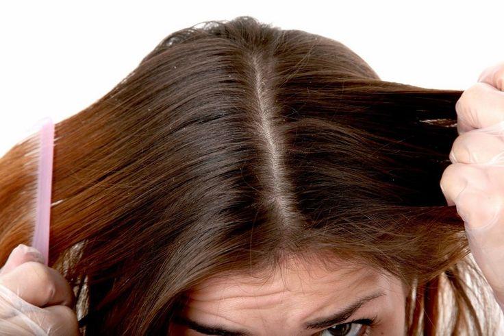Cara Alami Menghilangkan Kutu Rambut dengan Bawang Merah