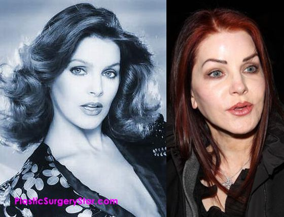 Priscilla Presley fell victim to shady Los Angeles plastic surgery.  She looks like two totally different people before and after the so called Botox injections.