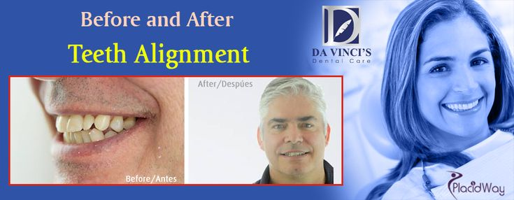 Teeth Alignment in San Jose, Costa Rica - Before and After Photos