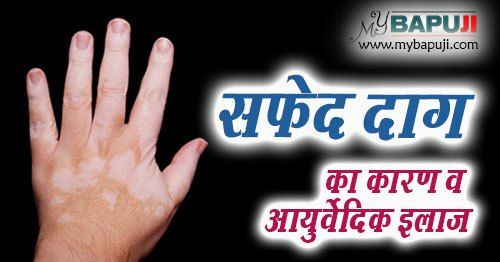 Hyperhidrosis Natural Treatment In Hindi