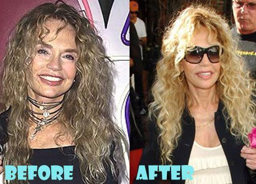 Dyan Cannon Plastic Surgery Before and After Pictures - #Cannon #Dyan #pictures ...