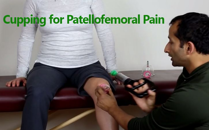 Cupping for Patellofemoral Pain  - In this video I am going to show you a natural therapy that's been practiced for hundreds if not thousands of years throughout the world. #patellofemoral #pain #kneeinjury FREE Video Training http://tridoshawellness.com/knee-pain-video-training