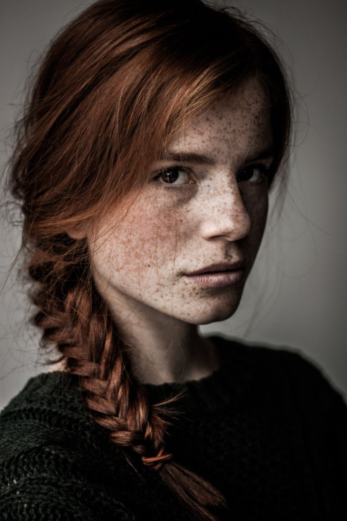 Scenery Images of Amazing Freckled People  | BESTOFFER4UALL