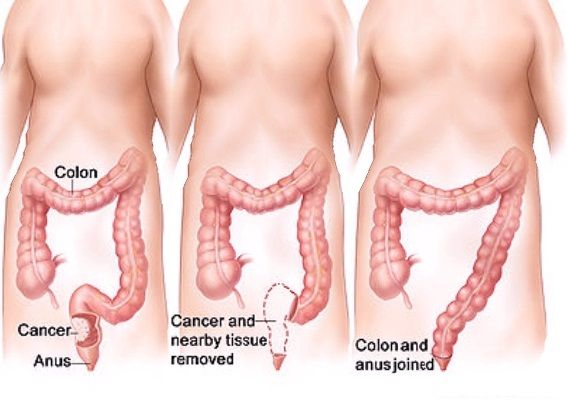 Treatment of colon cancer.