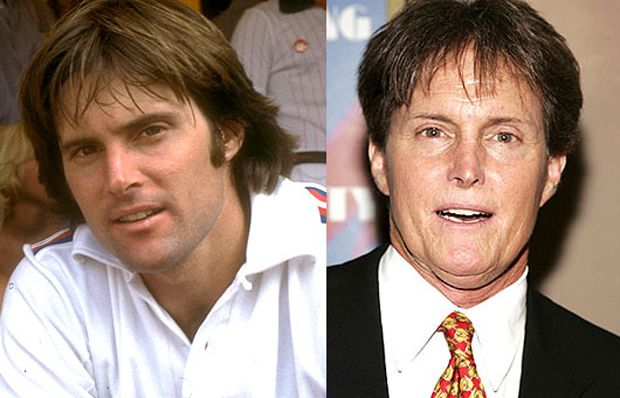 Prominente, die das schlimmste Glück in der Schönheitschirurgie hatten Bruce