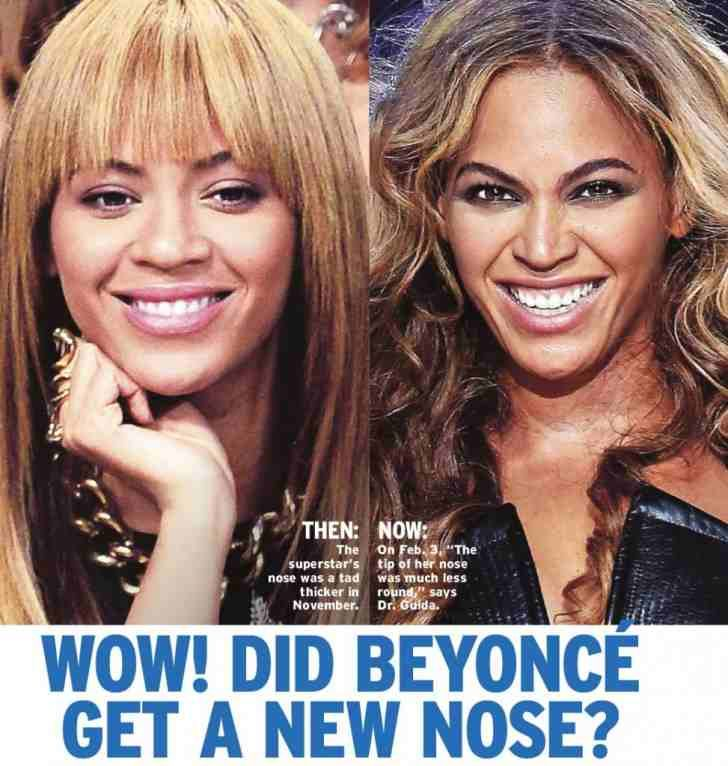 Beyonce Nose Job Plastic Surgery