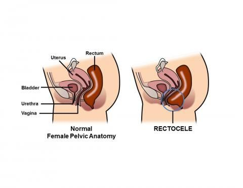 diagram of rectocele 17+ images about rectocele repair on pinterest | a well ...