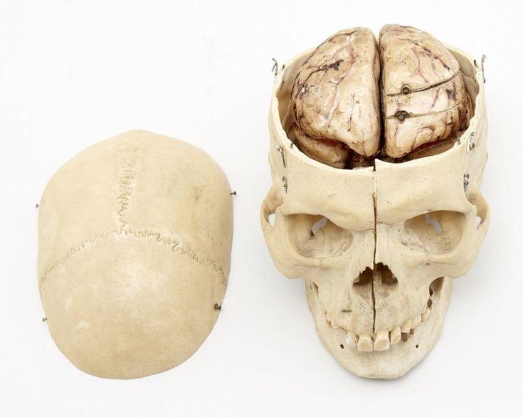 Dr. Louis AUZOUX (attribué à) CRANE anatomique humain démontable et articulé, contenant un cerveau en papier mâché peint et vernis polychrome entièrement démontable. Les deux hémisphères, le cervelet et… - Artcurial - 21/12/2015
