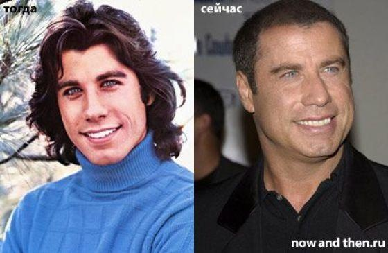 Celebs Then and Now photo