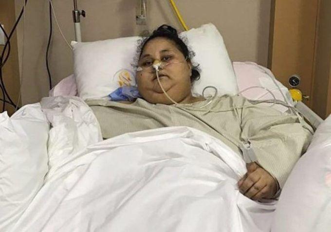 ¡Lamentable! Murió Abdul Atti, la mujer más obesa del mundo