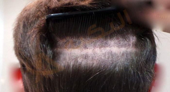 عملية زراعة الشعر جملة باتت تتردد كثير ا هذه الأيام وهذا دليل على الأهمية المتزايدة لموضوع تساقط الشعر وتجاوز نتائجه ويصبح إيضاح هذا المفهوم أمرا أكثر إلحاح ا