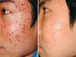 check out How to get rid of acne scars overnight review http://howtogetridofacnescarsovernight.tk/how-to-get-rid-of-acne-scars-overnight-review/ #Howtogetridofacnescarsovernightreview #simplewaystogetridofpimplesovernight #whatthebestwaytogetridofpimplesovernight