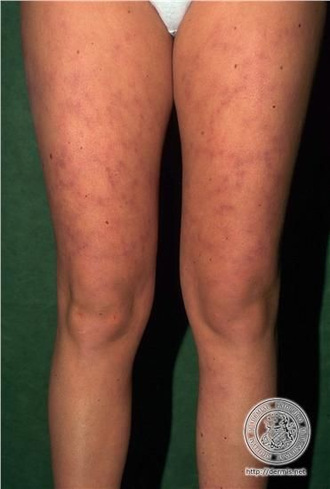 localisation: upper leg diagnosis: Systemic Lupus Erythematosus Livedo Reticularis