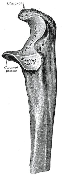 Ulna bone~ of the lower human arm, articulates with the humerus at elbow to allow for shortening of the arm.