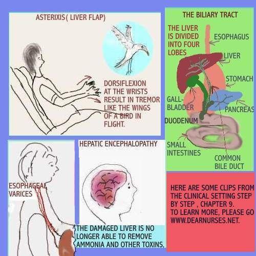 Asterixis (Liver Flap) | Nurseeeeee | Pinterest | Urea levels