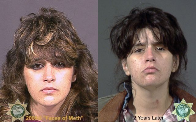 Before and after: Celebrity 'faces of meth' - Rolling Out