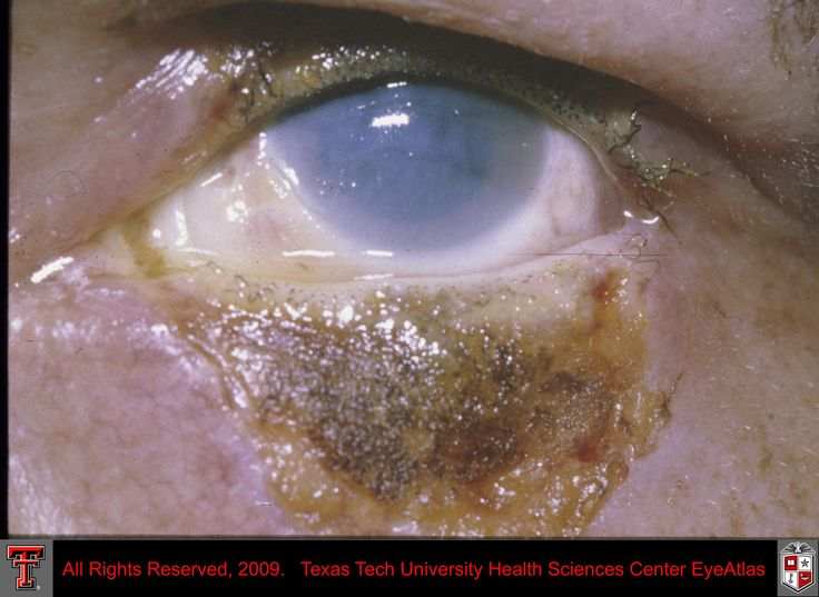 Department of Ophthalmology & Visual Sciences EyeAtlas
