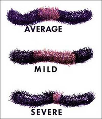 Woolly Bear Caterpillars Predict Wet, Cold Winter [NPR ...