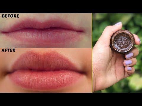 how to make top lip fuller