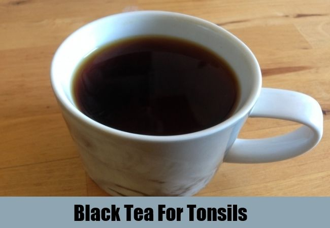 5 Effective Home Remedies For Tonsils | http://www.searchhomeremedy.com/effective-home-remedies-for-tonsils/