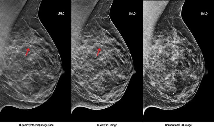 hologic selenia dimensions breast tomosynthesis Dimensions digital breast tomosynthesis (dbt)  this evaluation of the hologic selenia dimensions tomosynthesis system had two objectives.