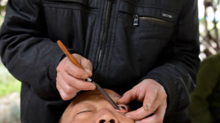 Les métiers les plus bizarres autour du monde - nettoyeur d'yeux en Chine