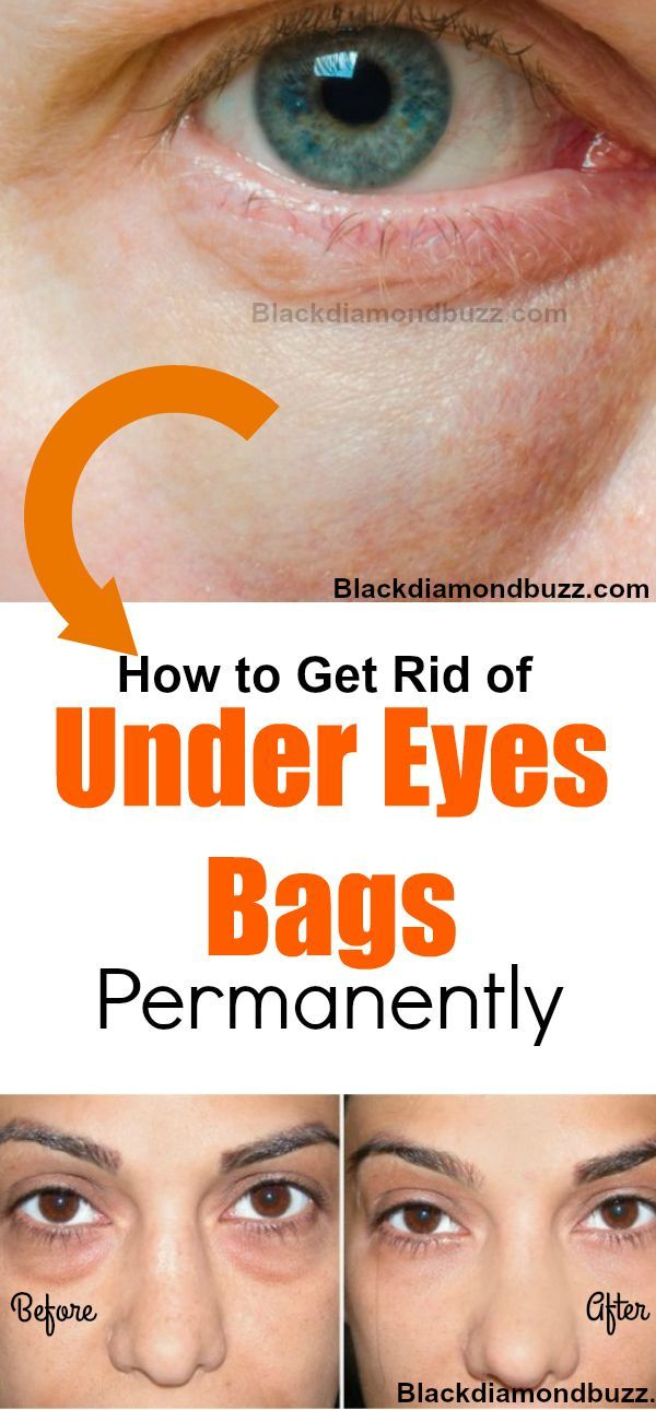 how to lose bags under eyes