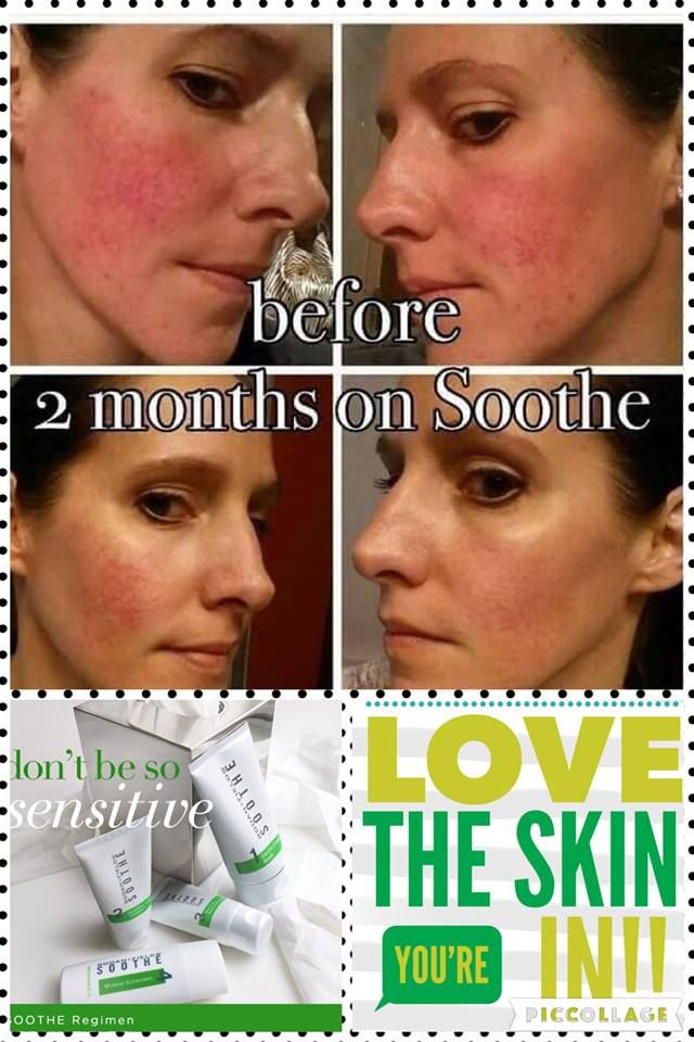 Rodan + Fields Soothe Regimen is for sensitive skin.  This regime calms, relieves, nourishes and defends your skin.  All or our products have a 60 day money back guarantee.  Message me on pinterest @ R+Fskincare101 for more info.
