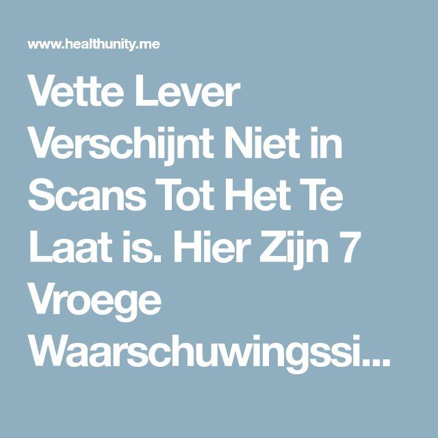 Vette Lever Verschijnt Niet in Scans Tot Het Te Laat is. Hier Zijn 7 Vroege Waarschuwingssignalen Om Het Uit Te Zoeken.. | Health Unity