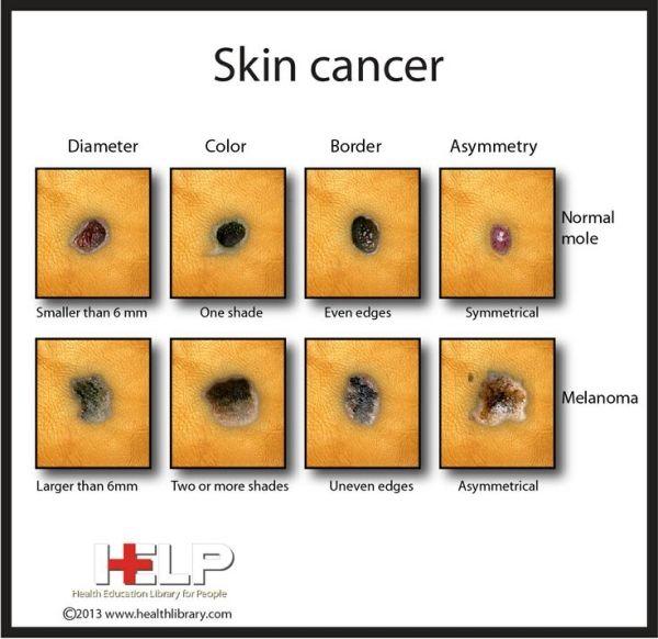 Best Natural Skin Cancer Cure