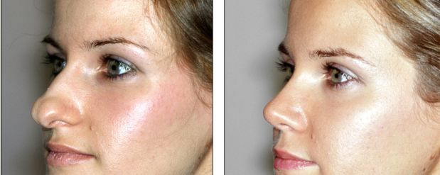 Nose Before and After Rhinoplasty | Best Rhinoplasty