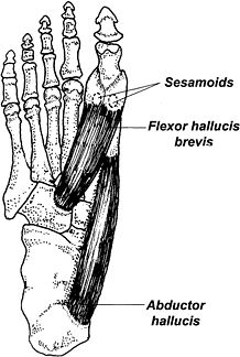 Unfortunately, my current injury is this.... torn. The sesamoid bones to which the Flexor Hallucis Brevis & the Abductor Hallucis are attached to. they are located in a weight-bearing area, the sesamoid bones of the feet are subjected to tremendous compressive forces. The most common cause of a sesamoid injury is the rigid plantarflexed first ray. This alignment pattern is present in approximately 14 percent of the population and is extremely common in people with high arches.