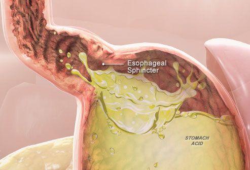 Acid Reflux Disease, Commonly Called GERD
