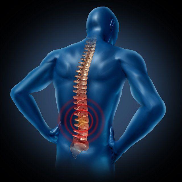kríže, chrbát, chrbtica, miecha, nervy, bolesť, stavce, stavec