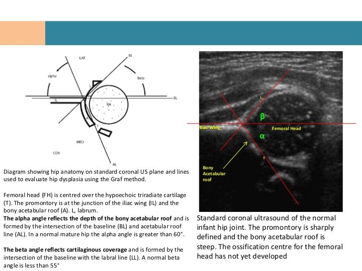 congenital hip dislocation ultrasound angles