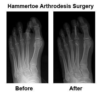 Before and after x-rays of a hammertoe correction | Voeten ...
