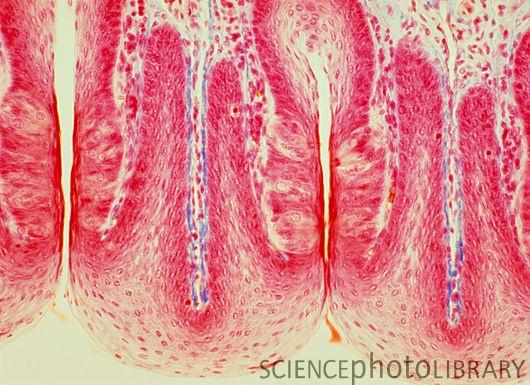 Tongue taste buds, light micrograph