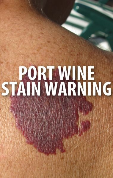 Dr. Disgusting and Dr. Sandra Lee treated a woman with Port Wine Stain spots all across her legs and treated her with lasers and special makeup. http://www.recapo.com/the-doctors/the-doctors-beauty/doctors-tv-serious-risks-port-wine-stain-microskin-review/