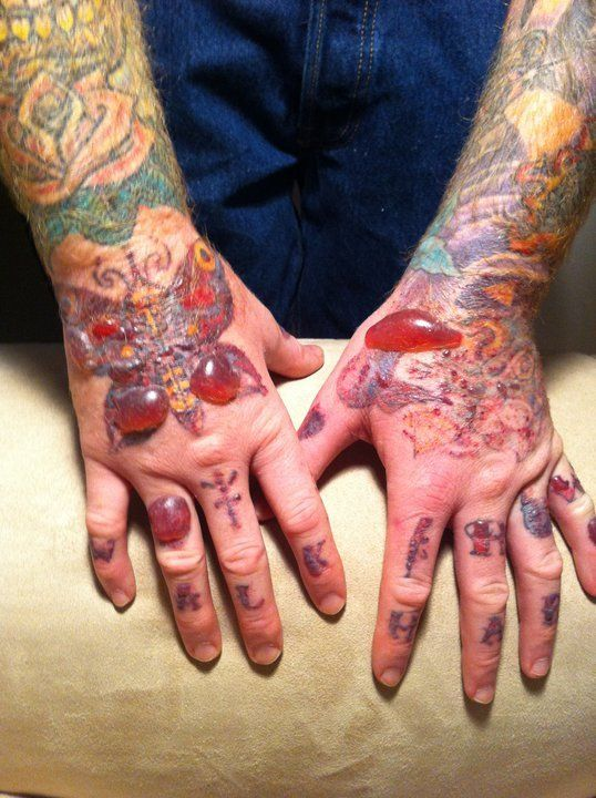 Worst Tattoo Removal Nightmares Holy Cow Nightmare