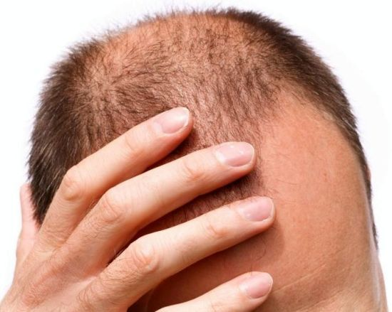 Home Remedies for Hair Loss in Men | Organic Facts