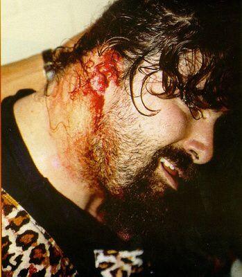 Image from http://upload.wikimedia.org/wikipedia/en/b/bd/Foley_Ear_Injury.jpg.