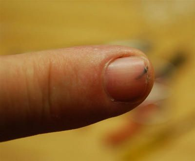 Soak splinter in vinegar for 20 minutes. Vinegar loosens the splinter and it will just slide right out easily when you try to remove it.
