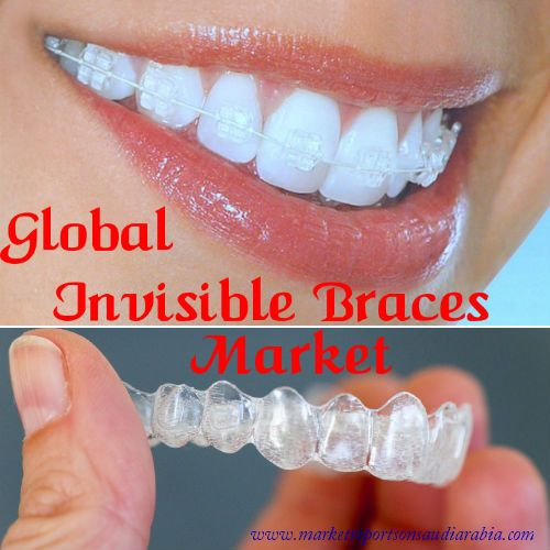 Global #InvisibleBraces Market: Trends, Opportunities and Forecasts (2016-2021) - (By Types - Clear Aligners, Ceramic, Lingual; By Region - #Americas, Europe, Middle East, Africa, Asia-Pacific; By Country- USA, UK, Germany, Mexico, Canada, Brazil, India, China, #SaudiArabia, UAE, South Africa)