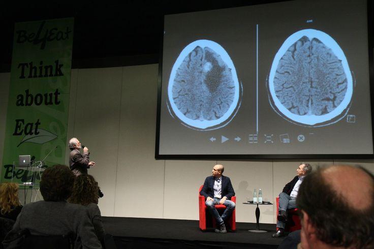 Tumore al cervello sparito grazie all'alimentazione | Paroladiugo.it