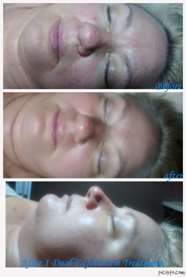 AVEDA Dual Exfoliation Treatment with Ultrasonic Therapy, first treatment